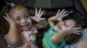 Povestea INCREDIBILĂ a gemenelor siameze care AU UIMIT lumea medicinei