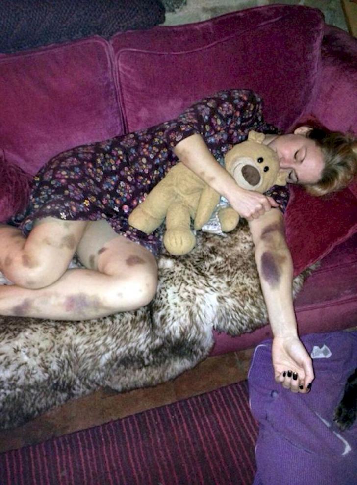 S-a culcat sănătoasă, dar s-a trezit plină de vânătăi. Ce s-a întâmplat peste noapte. S-a ÎNGROZIT