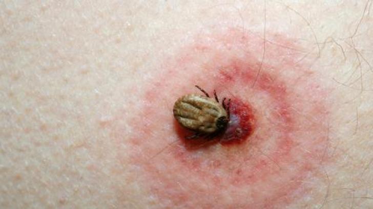 Veste extraodinară! S-a descoperit un leac extrem de eficient în tratarea maladiei Lyme