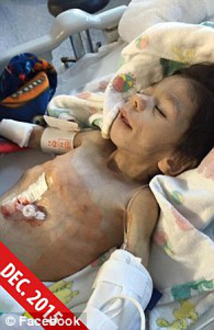 Transformare incredibilă a unui orfan din Bulgaria, după ce a fost ADOPTAT. La 7 ani, avea 3 kg