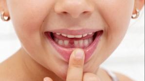 """Dinţii de lapte căzuţi de la copii sunt """"comori de aur""""! Motivul pentru care să nu-i arunci"""