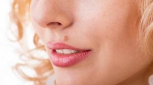 Primele simptome ale cancerului de piele. Mergi imediat la doctor dacă vezi ASTA!