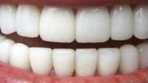 Foarte tare! Cum să-ţi albeşti dinţii într-o singură oră!