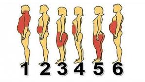 Identifică-ţi tipul de obezitate pentru a scapa rapid de kilogramele în plus