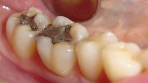 Plombele dentare vor dispărea. Tratamentul revoluţionar care REGENEREAZĂ dinţii