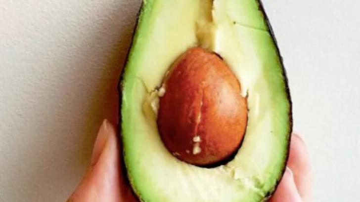 Cum poţi scăpa de celulită folosind un sâmbure de avocado