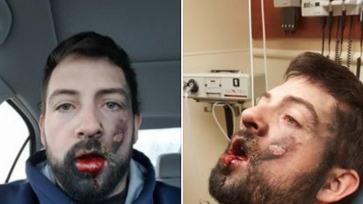Experienţa CUMPLITĂ a unui tânăr: ţigara electronică i-a explodat în gură. Ce a păţit