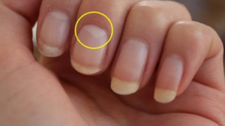 Ce înseamnă când lipsește semiluna de la baza unghiei. E grav! Mergi repede la medic