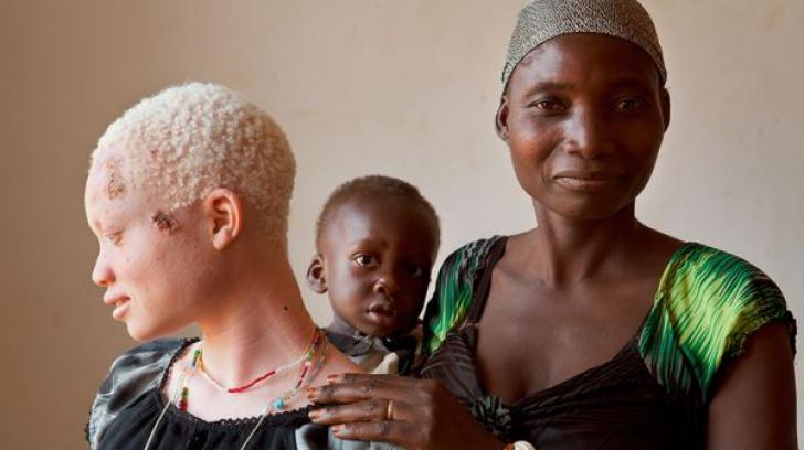 Vânată pentru culoarea pielii. Coșmarul unei femei albinoase din Africa