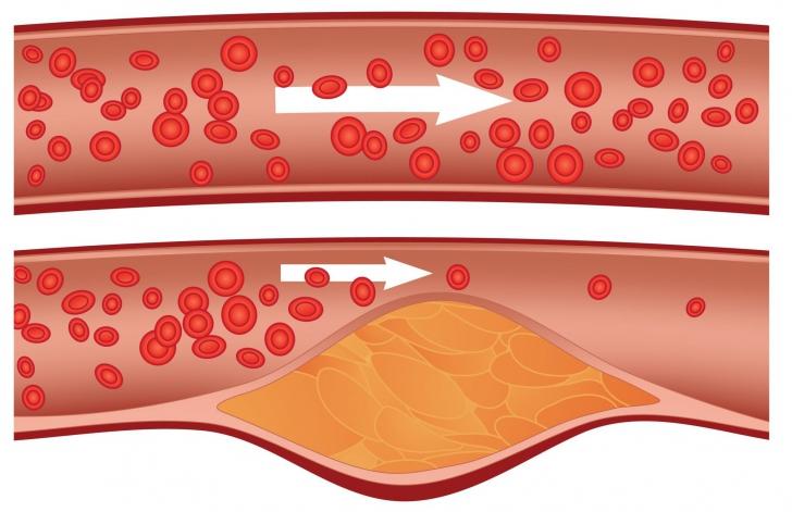 metode naturiste de curatare a vaselor de sange
