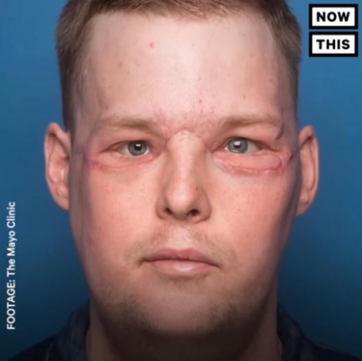 Un glonţ i-a distrus faţa. După 10 ani, bărbatul a primit un chip nou! Dovada că minunile există! / Foto: captura video