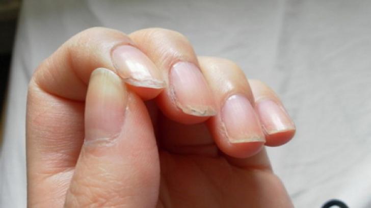 Ai unghiile exfoliate? Vezi ce încearcă organismul să îți transmită