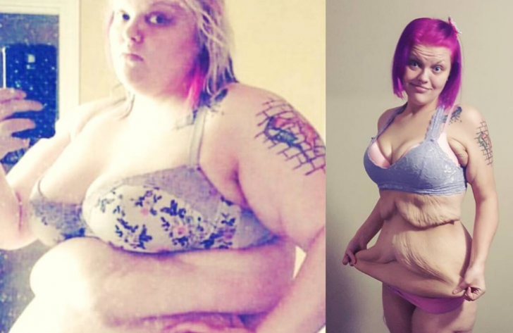 A pierdut 84 kg într-un timp record. Cum arată această fată dezbrăcată e ŞOCANT. Regretă că a slăbit