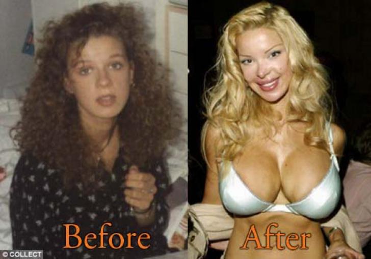 Cum arată femeia care şi-a făcut operaţii estetice în valoare de 2,4 milioane de dolari