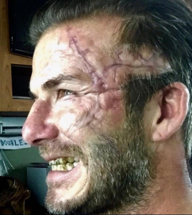 Apariţie ÎNFIORĂTOARE a lui David Beckham, plin de cicatrici pe faţă. Ce a păţit