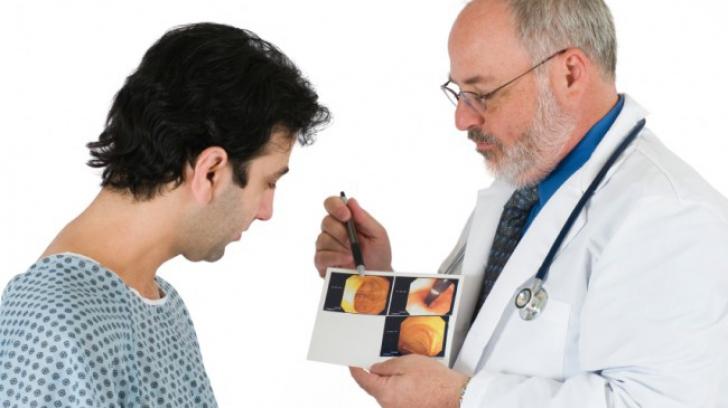 Patru semne ale cancerului de colon pe care toată lumea le ignoră