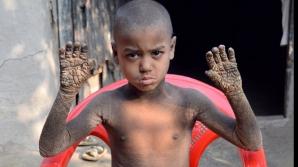 Copilul din Bangladesh
