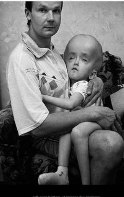 31 de ani de la dezastrul de la Cernobîl. Cele mai şocante imagini cu consecinţele catastrofei