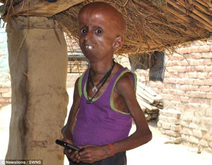 El este ADEVĂRATUL Benjamin Button: la 21 de ani, are corpul unui bărbat de 160 de ani