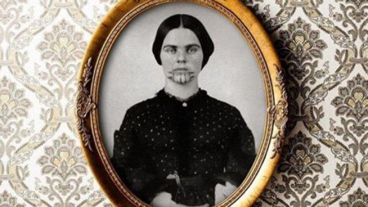 Povestea şocantă din spatele acestei imagini. Cine este tânăra cu semnele misterioase pe faţă?