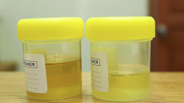 Ce înseamnă culoarea modificată a urinei şi care sunt cauzele