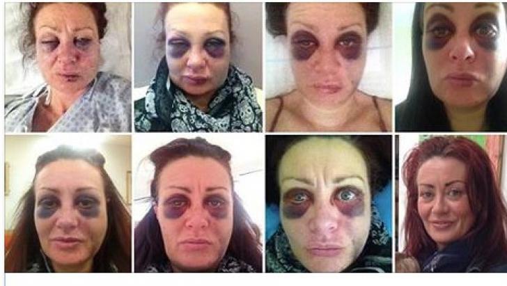 Curajul de a înfrunta violenţa domestică. Femeia şi-a fotografiat în fiecare zi vânătăile cu un scop
