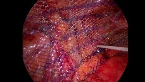 Ce este si de ce apare hernia inghinala - cauze, simptome, metode de tratament si prevenire
