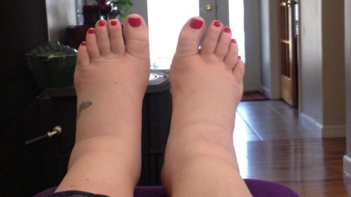 picioarele rănite picioarele sunt reci