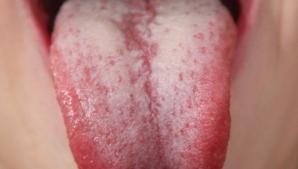 Ai observat că limba ta este albicioasă? Nu mai ignora acest lucru! Uite ce înseamnă