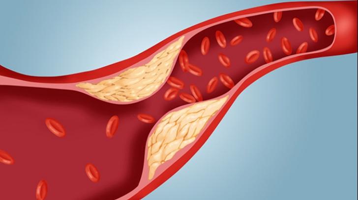 Alimente care cresc colesterolul