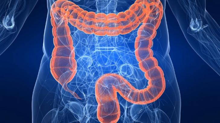 Aceste alimente opresc răspândirea cancerului de colon