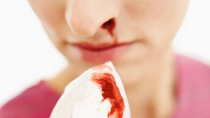 Îţi curge sânge din nas? Nu mai ţine capul pe spate! Poate fi letal