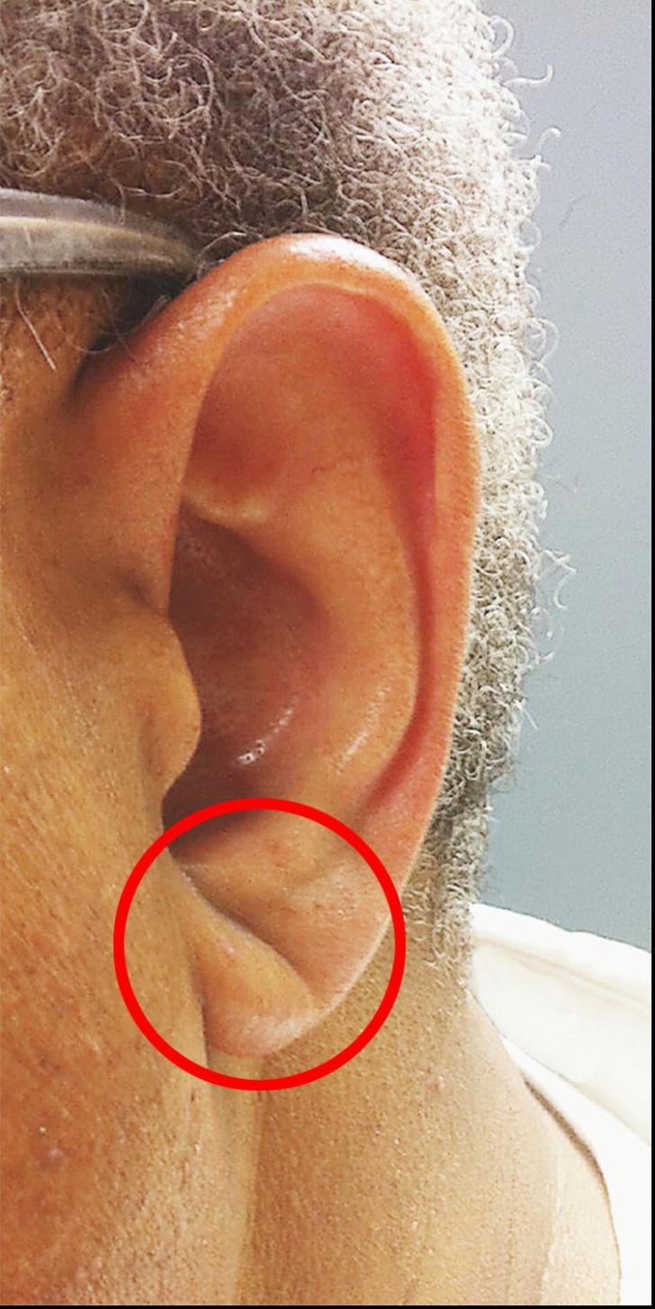 Dacă urechea ta arată așa, ai putea fi în pericol de accident vascular cerebral