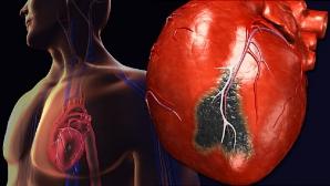 Simptomele acestea îţi spun că vei avea un atac de cord în următoarele 30 de zile