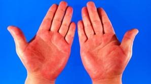 Palmele roșii, semn de boală