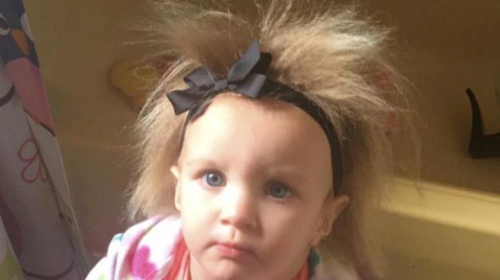 Această fetiță a uimit pe toată lumea cu părul ei de neîmblânzit. Nu-ți vine să crezi cum arată
