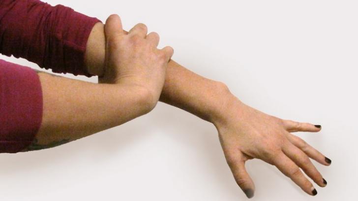 Brațul stâng doare