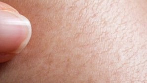 Ai acest semn pe piele? Ia măsuri! Riști să ai probleme cu colesterolul