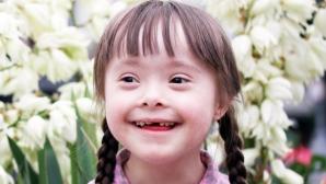 Islanda este prima ţară europeană care aproape a eradicat sindromul Down
