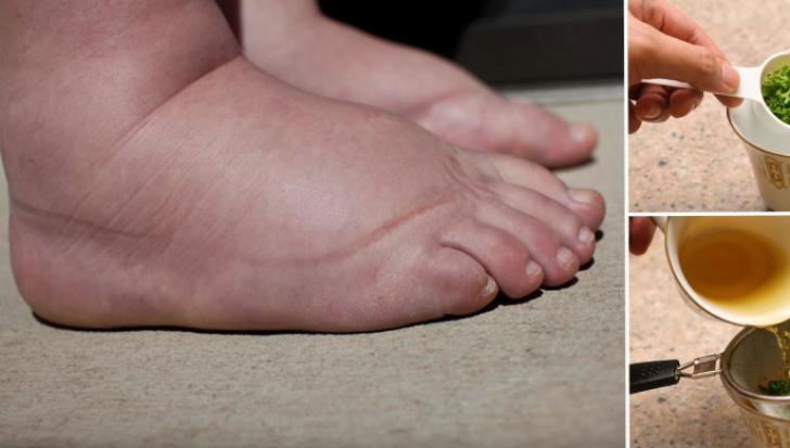 umflături la picioare și glezne la vârstnici