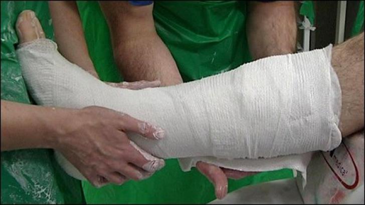 Un chirurg ortoped şi-a rupt piciorul chiar la intrarea în sala de operaţie