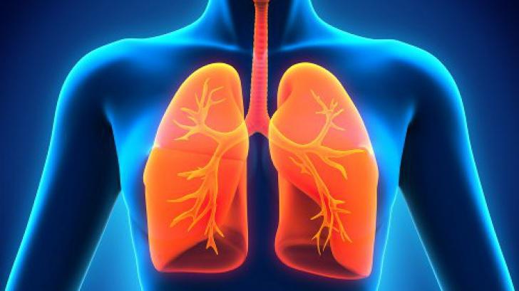 Dieta care poate preveni cancerul pulmonar
