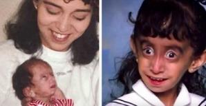 I-au spus că e un monstru care trebuie ucis cu foc! După 25 de ani, tânăra a şocat cu apariţia sa!