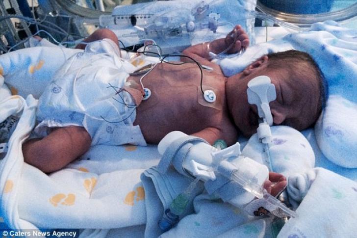 Moment înfiorător pentru o tânără însărcinată: a început să aibă dureri, apoi abdomenul i-a explodat
