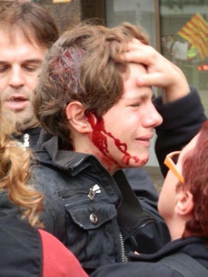 Referendum în Catalonia. Cele mai dure fotografii şi imagini video, din urma confruntărilor