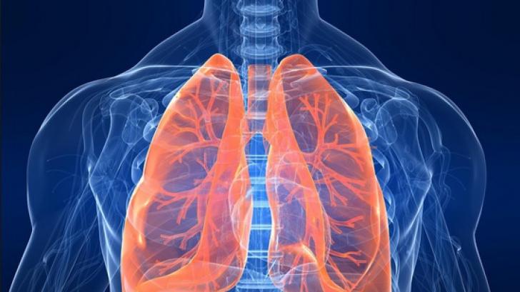 Obiceiuri zilnice care te îmbolnăvesc de cancer pulmonar