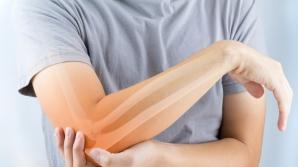 7 condimente care tratează reumatismul