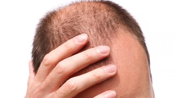 Multă lume nu ştie, însă ai nevoie de un singur ingredient ca să opreşti căderea părului