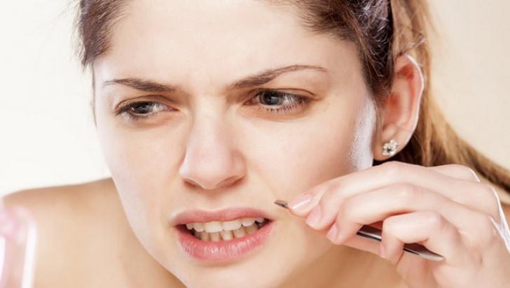 Cum să scapi DEFINITIV de mustaţă, în 5 minute, cu trei ingrediente simple
