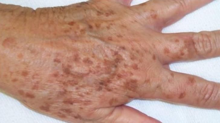 Scapă de petele de bătrâneţe de pe mâini, gât şi faţă cu acest remediu simplu